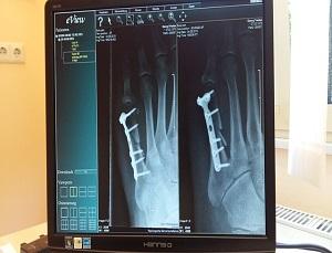 x-ray: sample nurse resumes